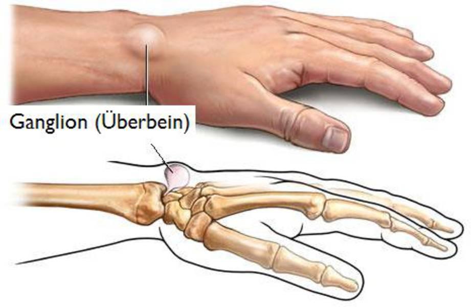 Dr. med. Daniel Münch: Handoperationen