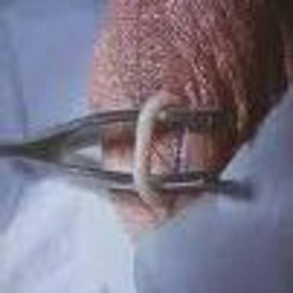 Spermaprobe nach vasektomie | Spermiogramm Kosten: Wer