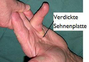 Dupuytren's contracture - Dr. med. Daniel Münch