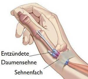 Inflammation of the thumb tendon sheath - Dr. med. Daniel Münch